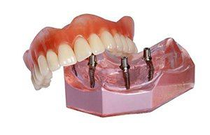 Model implant retained dentures